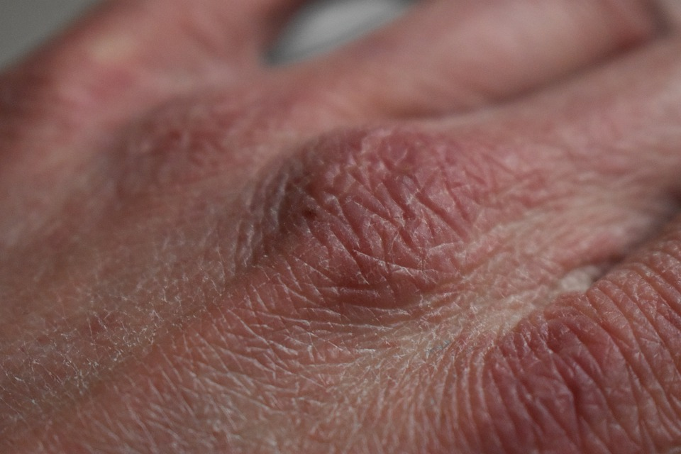 Eczema – When your skin is screaming