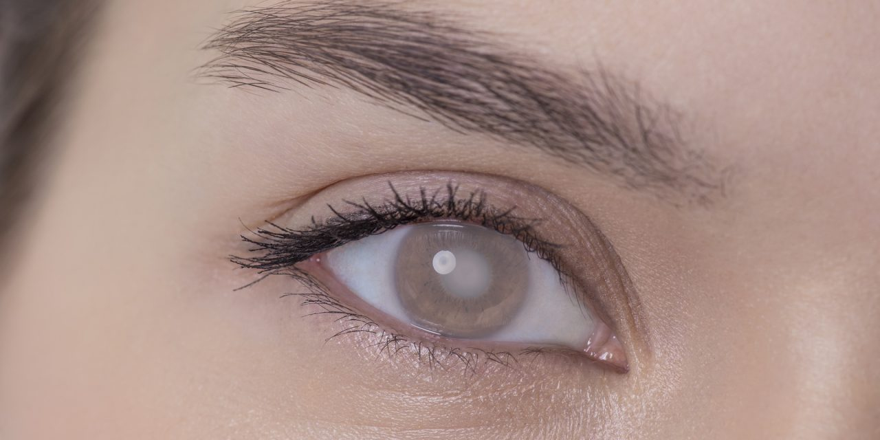 Cataracts – See the difference!